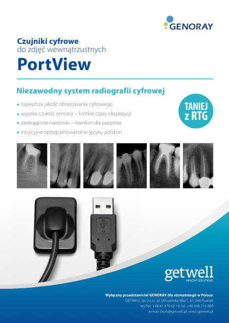 radiografia port view