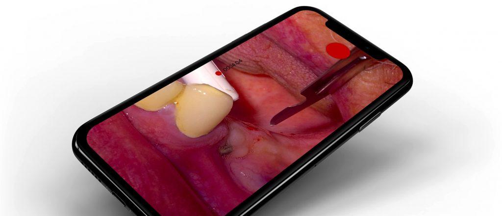 Kamera OXO 4K szkolenia stomatologiczne online