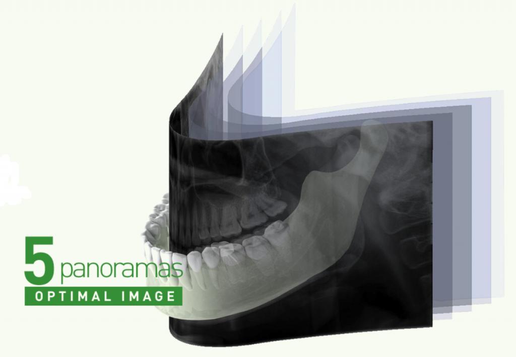 Pantomograf Papaya 2D plus z cefalostatem funkcja Multifocus