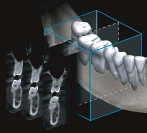 Pantomograf Papaya 2D plus z cefalostatem funkcja cust